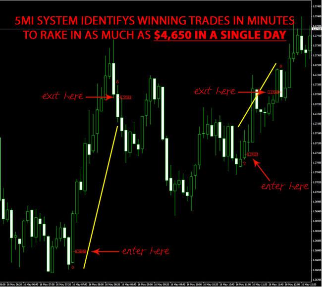 5 MI System